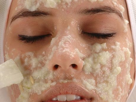 acne tardiva